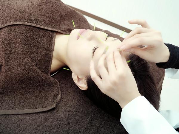西宮の美容鍼専門鍼灸院ハリエッセンスの施術